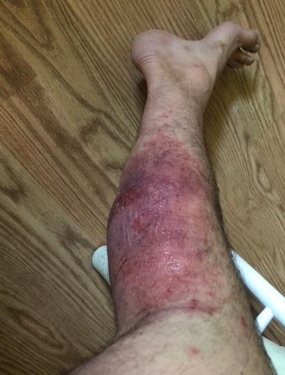 Ben's leg